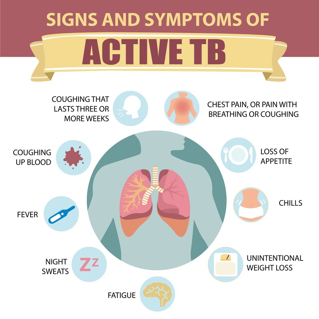 Diagram showing signs and symptoms of Active TB.